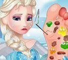 Bác sĩ chữa chân cho Elsa